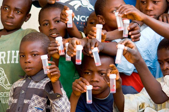 Children infected with schistosomiasis show vials of blood-red urine.
