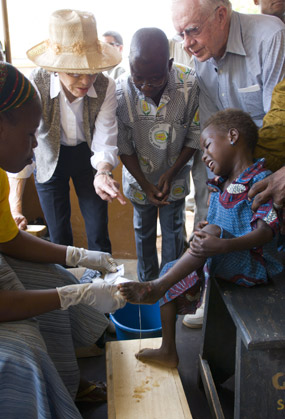 Jimmy Carter watches as a health worker dresses a child's Guinea worm wound.