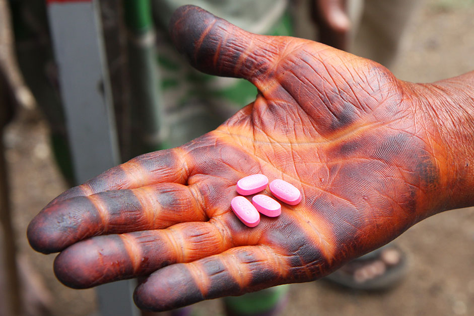 A local resident in Ethiopia holds an adult dose of the drug Zithromax ®